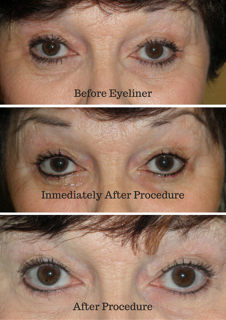 Permanent Eyeliner USA | Permanent Cosmetics by Tina Pinz